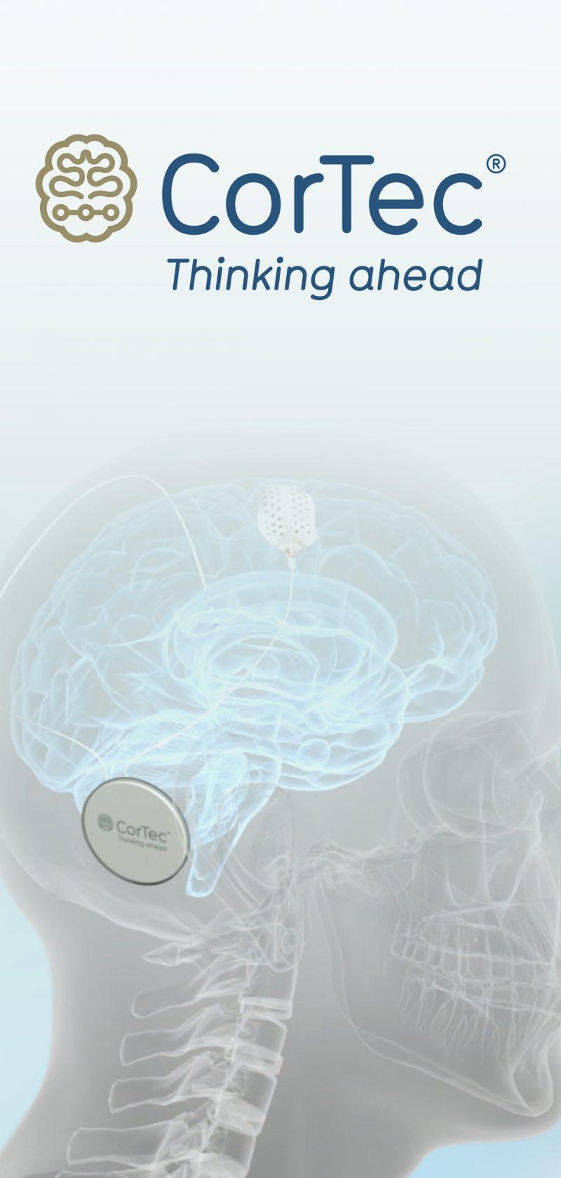 Die unendlichen Weiten des Nervensystems. Hier bei uns gelandet.